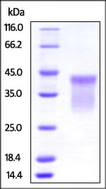 SDS-PAGE - Recombinant human TNFRSF14/HVEM protein (Active) (ab219714)