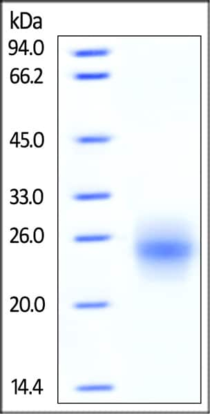 SDS-PAGE - Recombinant human CTLA4 protein (Active) (ab219715)