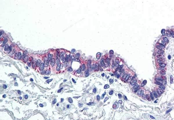 Immunohistochemistry (Formalin/PFA-fixed paraffin-embedded sections) - Anti-IL-6 antibody (ab219758)