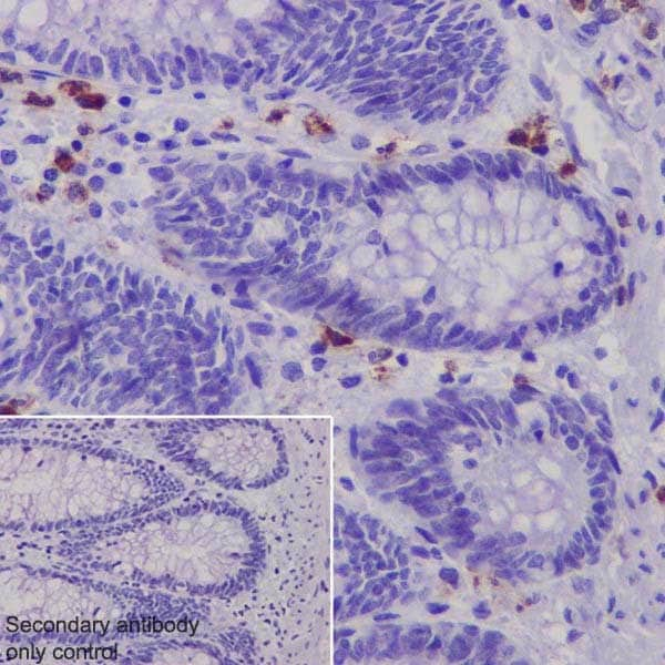 Immunohistochemistry (Formalin/PFA-fixed paraffin-embedded sections) - Anti-Granzyme B antibody [EPR20129-217] - BSA and Azide free (ab219803)