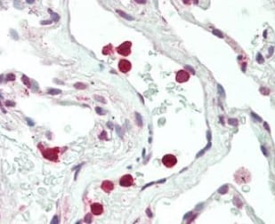 Immunohistochemistry (Formalin/PFA-fixed paraffin-embedded sections) - Anti-WASF2/WAVE2 antibody (ab219812)