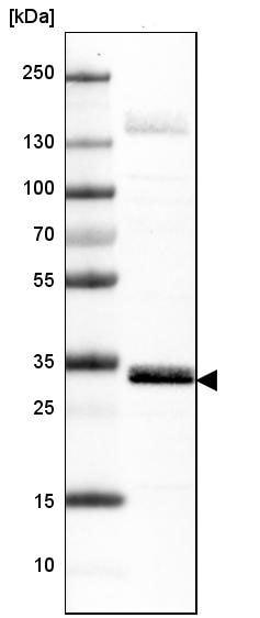 Western blot - Anti-MCU antibody [CL3576] (ab219827)