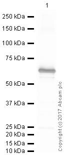 Western blot - Anti-Diphtheria Toxin antibody [IGX3492R-3] (ab219834)