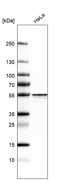 Western blot - Anti-HNRPH2/HNRNPH2 antibody (ab219845)