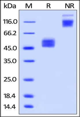 SDS-PAGE - Recombinant Human TMIGD2/IGPR1 protein (Fc Chimera) (ab219874)
