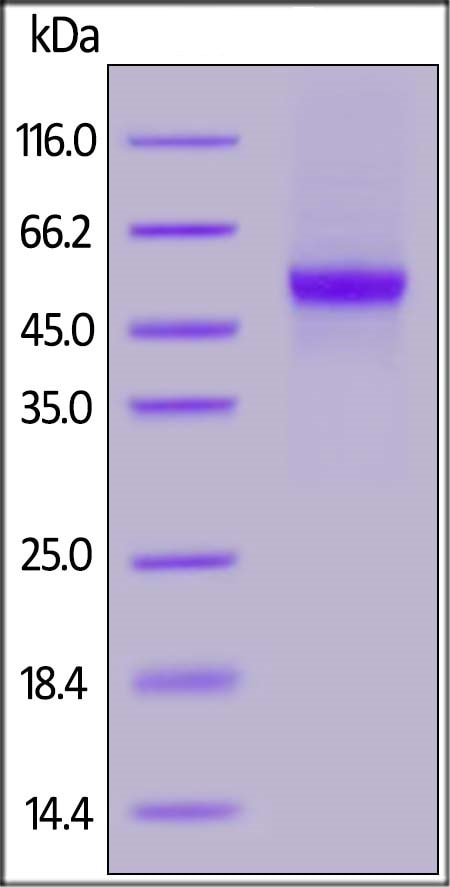 SDS-PAGE - Recombinant Influenza A Avian Influenza A Neuraminidase protein (His tag) (ab219893)
