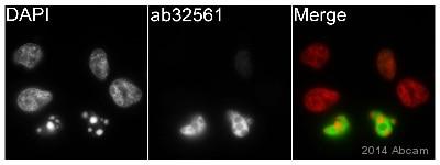 Immunocytochemistry/ Immunofluorescence - Anti-Cleaved PARP1 antibody [Y34] - BSA and Azide free (ab219953)