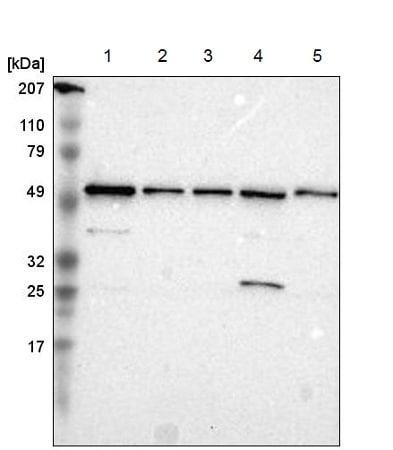Western blot - Anti-TOM1 antibody (ab219972)
