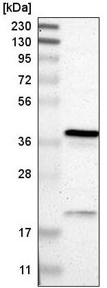 Western blot - Anti-RP2 antibody (ab219976)