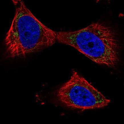 Immunocytochemistry/ Immunofluorescence - Anti-PPP3CB antibody (ab219984)