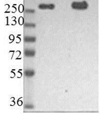 Western blot - Anti-Nestin antibody [10C2] (ab22035)