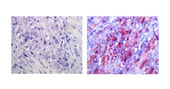 Immunohistochemistry (Formalin/PFA-fixed paraffin-embedded sections) - Anti-TLR4 antibody [76B357.1] (ab22048)