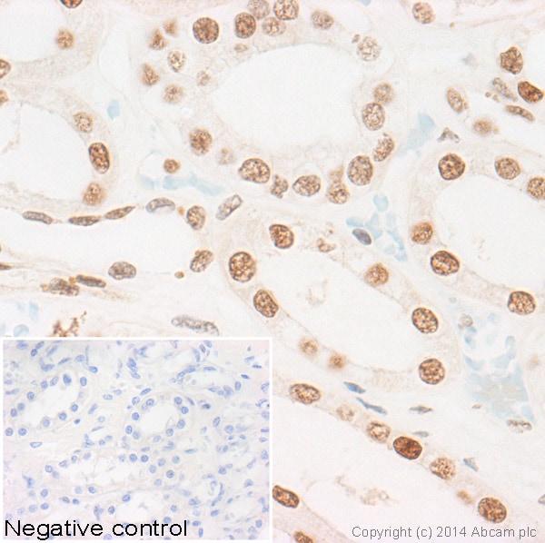 Immunohistochemistry (Formalin/PFA-fixed paraffin-embedded sections) - Anti-Histone H2A (symmetric di methyl R3) antibody (ab22397)