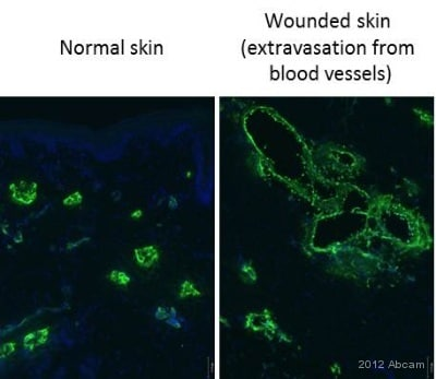 Immunohistochemistry (Frozen sections) - Anti-S100A9 + Calprotectin (S100A8/A9 complex)  antibody [MAC387] (ab22506)