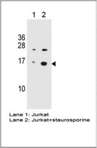 Western blot - Anti-gamma H2A.X (phospho S139) antibody [3F2] (ab22551)