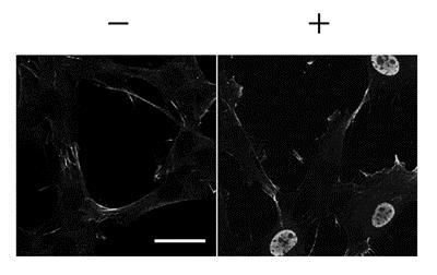 Immunocytochemistry/ Immunofluorescence - Anti-Sp7 / Osterix antibody (ab22552)