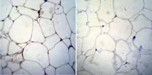 Immunohistochemistry (Formalin/PFA-fixed paraffin-embedded sections) - Anti-Adiponectin antibody [19F1] (ab22554)