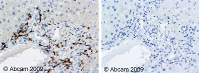 Immunohistochemistry (Formalin/PFA-fixed paraffin-embedded sections) - Anti-CD74 antibody [PIN.1] (ab22603)
