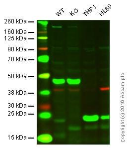Western blot - Anti-Glutathione Peroxidase 1 antibody (ab22604)