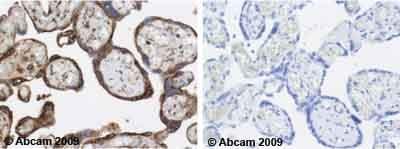 Immunohistochemistry (Formalin/PFA-fixed paraffin-embedded sections) - Anti-Calreticulin antibody [FMC 75] (ab22683)