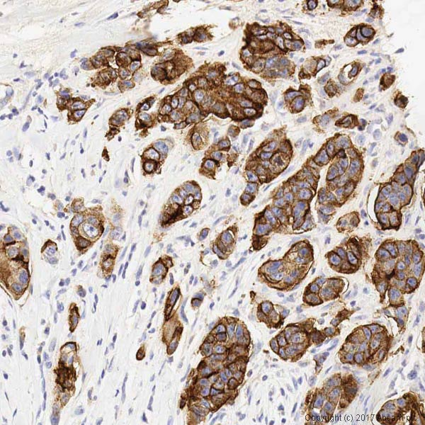 Immunohistochemistry (Formalin/PFA-fixed paraffin-embedded sections) - Anti-MUC1 antibody [SM3] (ab22711)