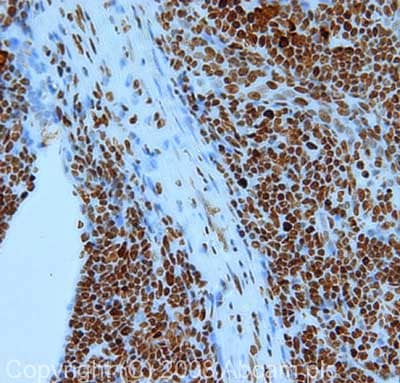 Immunohistochemistry (Formalin/PFA-fixed paraffin-embedded sections) - Anti-Nucleolin antibody (ab22758)