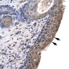 Immunohistochemistry (Formalin/PFA-fixed paraffin-embedded sections) - Anti-RNF12 antibody (ab22813)