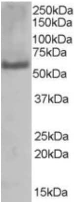 Western blot - Anti-PUF60/FIR antibody (ab22819)