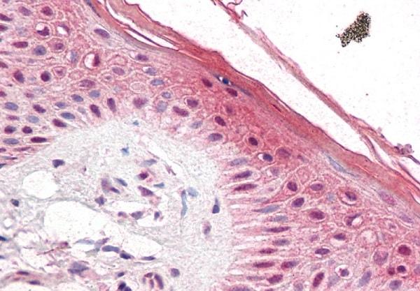 Immunohistochemistry (Formalin/PFA-fixed paraffin-embedded sections) - Anti-PUF60/FIR antibody (ab22819)