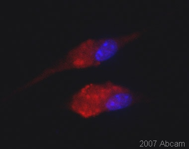Immunocytochemistry/ Immunofluorescence - Anti-NIR2 antibody (ab22823)