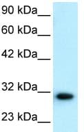 Western blot - Anti-D Box Binding Protein antibody - BSA and Azide free (ab22824)