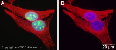 Immunocytochemistry/ Immunofluorescence - Anti-RECQ1 antibody (ab22830)