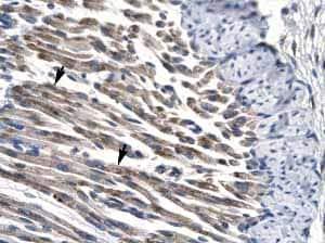 Immunohistochemistry (Formalin/PFA-fixed paraffin-embedded sections) - Anti-JMJD8 antibody (ab22843)