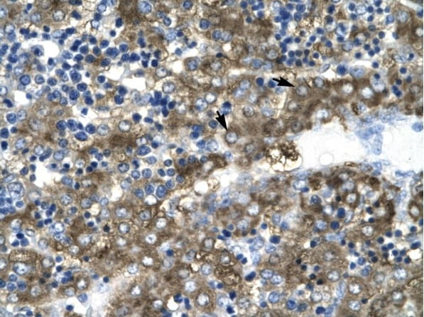 Immunohistochemistry (Formalin/PFA-fixed paraffin-embedded sections) - Anti-GATA2 antibody - ChIP Grade (ab22849)