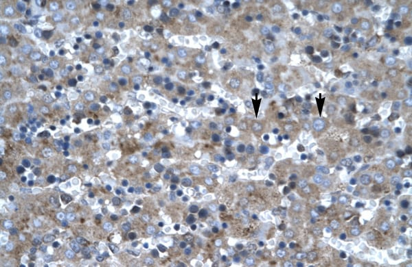 Immunohistochemistry (Formalin/PFA-fixed paraffin-embedded sections) - Anti-LHX6 antibody (ab22885)