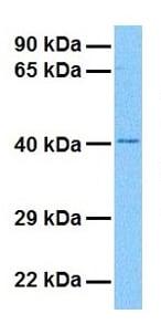 Western blot - Anti-LHX6 antibody (ab22885)