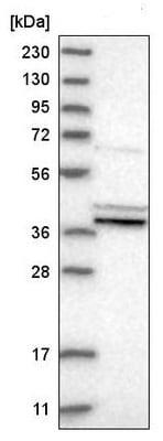 Western blot - Anti-PTGES2/Gbf1 antibody (ab220013)