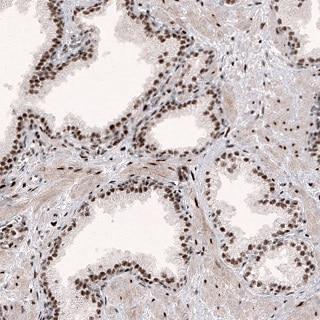 Immunohistochemistry (Formalin/PFA-fixed paraffin-embedded sections) - Anti-METTL14 antibody [CL4254] (ab220031)