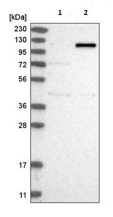 Western blot - Anti-AFF4 antibody (ab220039)