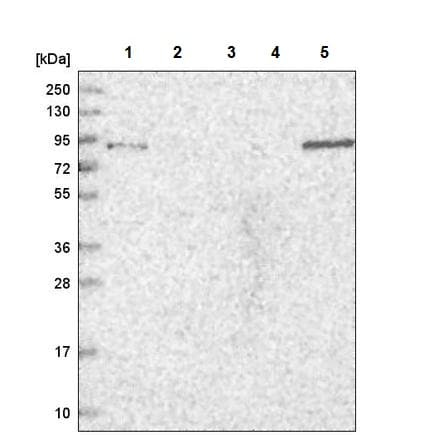 Western blot - Anti-TGFBRAP1 antibody (ab220084)