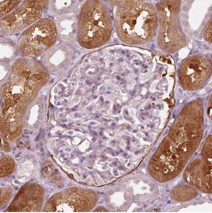 Immunohistochemistry (Formalin/PFA-fixed paraffin-embedded sections) - Anti-mu Crystallin antibody (ab220085)