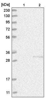 Western blot - Anti-C1orf77/FOP antibody (ab220086)