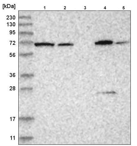 Western blot - Anti-AP-B antibody (ab220088)