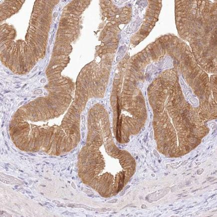 Immunohistochemistry (Formalin/PFA-fixed paraffin-embedded sections) - Anti-AP-B antibody (ab220088)