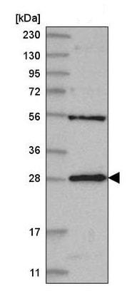 Western blot - Anti-MED6 antibody (ab220110)
