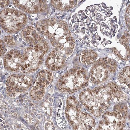 Immunohistochemistry (Formalin/PFA-fixed paraffin-embedded sections) - Anti-RASSF6 antibody (ab220111)