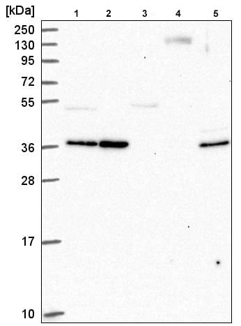 Western blot - Anti-EHF antibody (ab220113)
