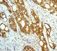 Immunohistochemistry (Formalin/PFA-fixed paraffin-embedded sections) - Anti-Bad antibody [Y208] - BSA and Azide free (ab220116)