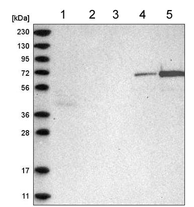Western blot - Anti-C2orf42 antibody (ab220155)