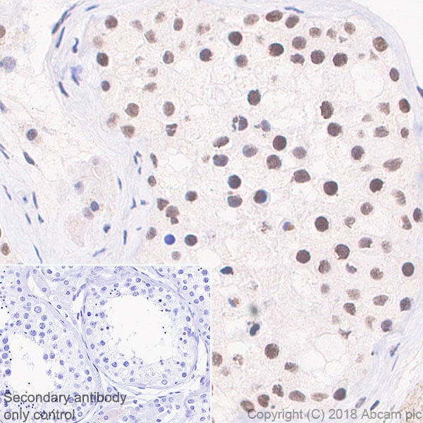 Immunohistochemistry (Formalin/PFA-fixed paraffin-embedded sections) - Anti-YTHDC1 antibody [EPR21821] (ab220159)